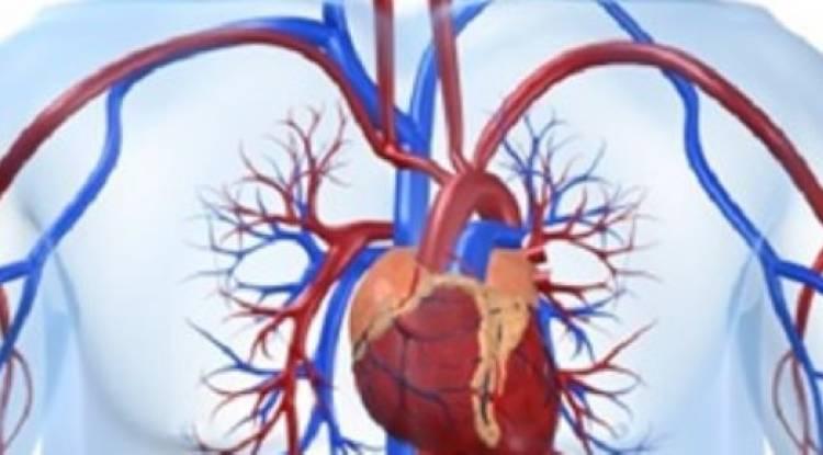 علاج الجلطة القلبيّة